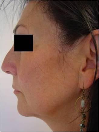 proces 1 przykład pacjenta - przed