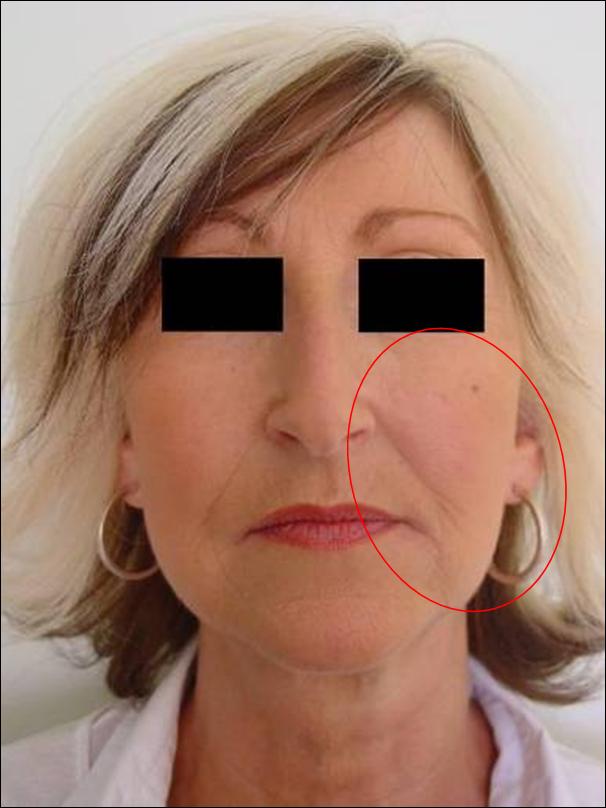 Nici do liftingu - środkowa część twarzy
