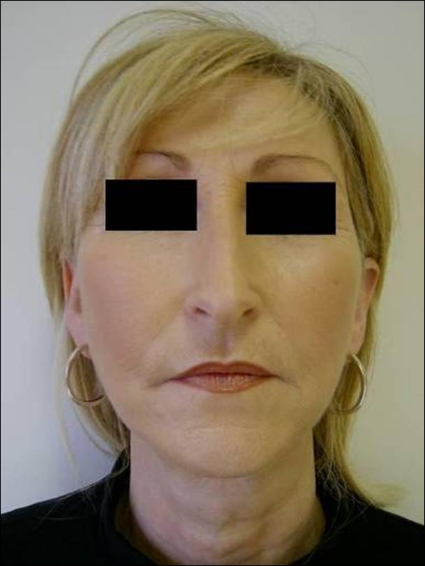 Nici do liftingu - środkowa część twarzy - po