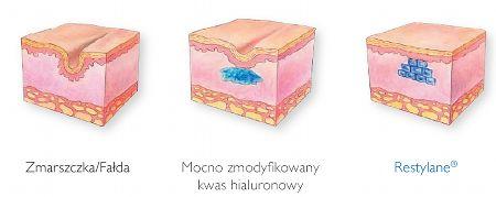 przekrój skóry